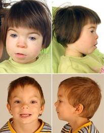 Vier Kinderfotos mit erkennbaren facialen FASD Merkmalen